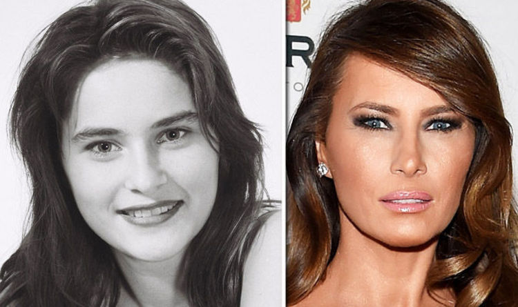 Malania Trump Botched Nose Job