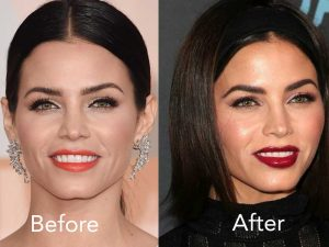 Jenna Dewan Chin Dimple Filler