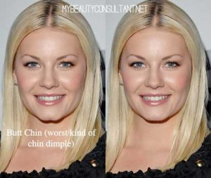 Are Chin Dimples an Attractive feature (with EDITS) - My Beauty