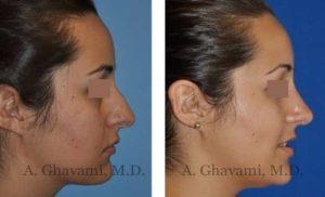 rhinoplasty_nose_bev_9TF5G