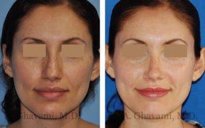 rhinoplasty_nose_bev_Aicp6