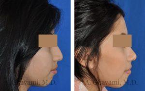 rhinoplasty_nose_bev_RDPmy