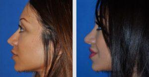 rhinoplasty_nose_bev_ZKhY6