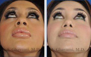 rhinoplasty_nose_bev_a9pDN