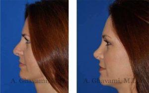 rhinoplasty_nose_bev_itCQR