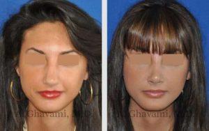 rhinoplasty_nose_bev_j22sl