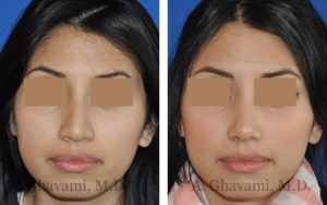 rhinoplasty_nose_bev_nR8K3
